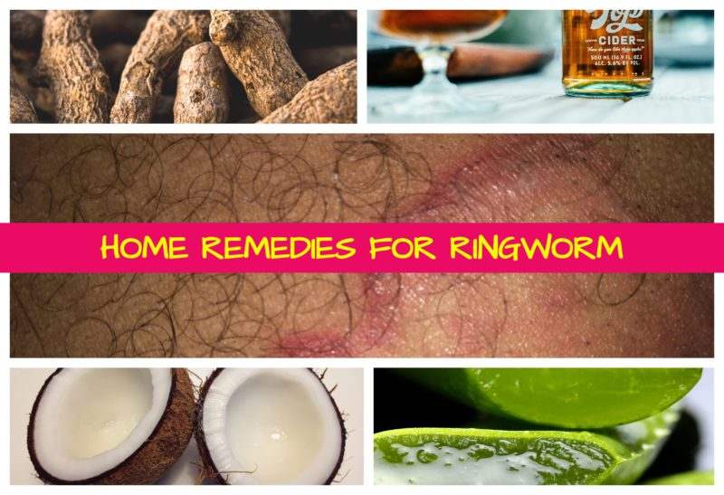 RINGWORM: FACTS, PREVENTION, AND REMEDIES